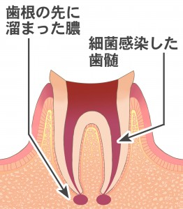 虫歯が進行すると歯の神経が腐って歯の根元に膿が溜まって歯ぐきが腫れてきます。